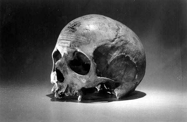 Craniul lui Alexander Pearce. University of Pennsylvania, Philadelphia. Wikipedia.